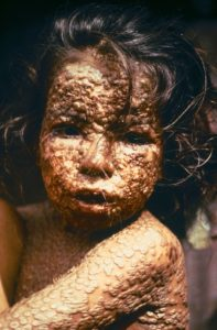 Girl afflicted with Small Pox (Bangladesh, 1973)